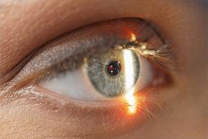 NWJ-VT-W47-05-EyeWelness